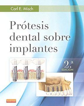 portada Prótesis Dental Sobre Implantes